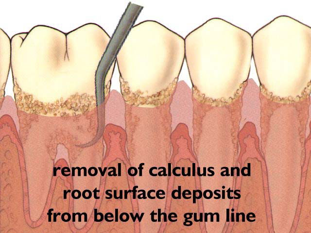 Periodontal Gum Treatment South Shore Dental Group
