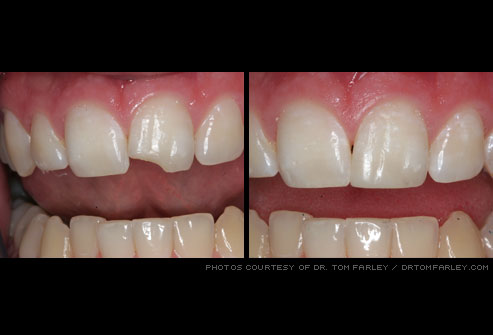 Bonding south shore dental group bonding is a procedure available to comprehensive family dentistry through which a tooth colored composite resin a durable plastic is applied to restore solutioingenieria Gallery